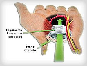 TunnelCarpale
